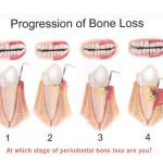 Bone-Loss1